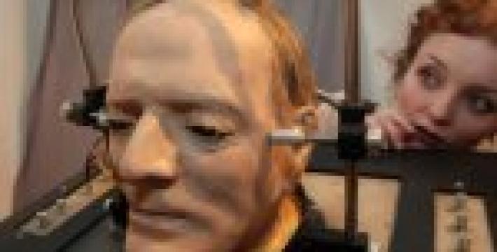 Итальянский ученый решился на пересадку головы