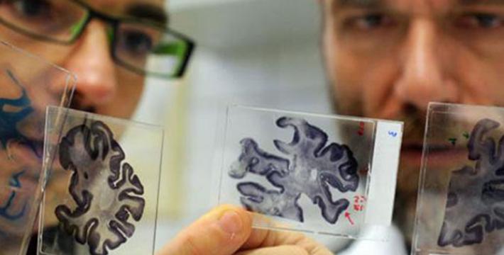 Сенсация: болезнь Альцгеймера может быть заразна