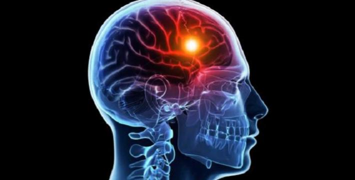 Знание иностранных языков поможет справиться с инсультом